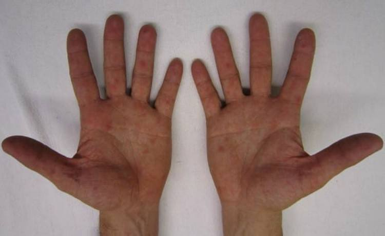 Two hands infected with HFMD