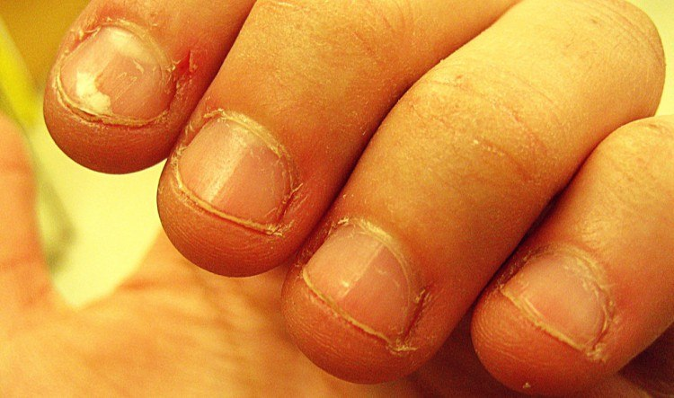 Nail-Biting Could Indicate This Personality Trait | TipHero