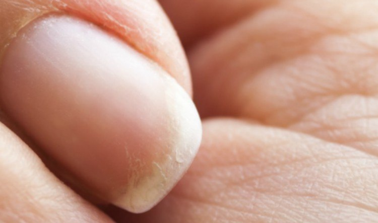 close-up of brittle nails