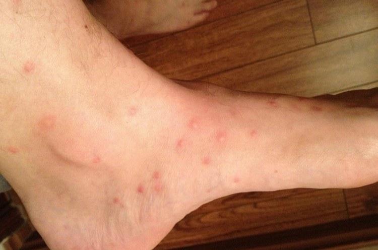 flea bites