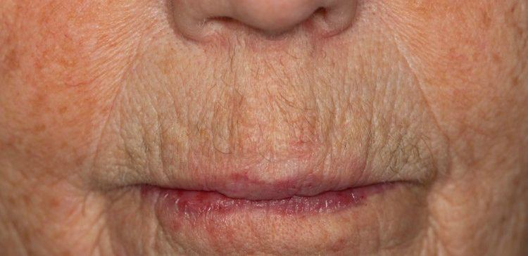 Image of wrinkled face.