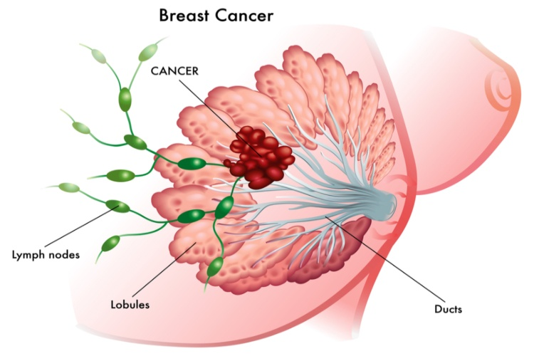Image of breast cancer mass.